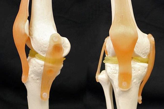 दुनिया का पहला थ्री-डी घुटना; अासानी से होगा फिट, लंबे वक्त तक चलेगा :